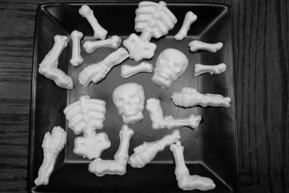 Bone molds